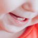 baby dentist santa cruz